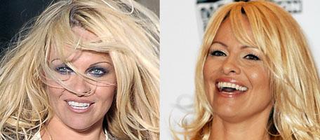 Pam Anderson Has Major Recent Plastic Surgery