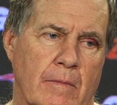 Bill Belichick black eye