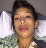 Farrah Abraham lip augmentation 155x160 Farrah Abraham LIP JOB Gone WRONG, VERY WRONG