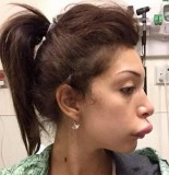 Farrah Abraham lip job gone wrong 155x160 Farrah Abraham LIP JOB Gone WRONG, VERY WRONG