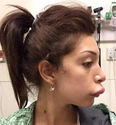 Farrah Abraham lip job gone wrong