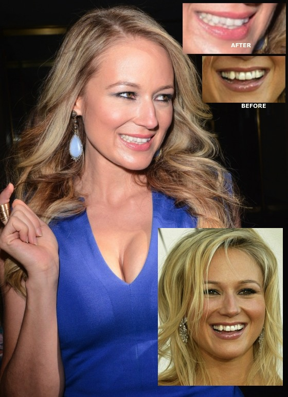 Jewel Today Show in New York 02 560x820 Jewel Debuts New TEETH