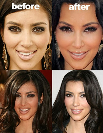 Kim Kardashian Face Before and After Plastic Surgery Kim Kardashians