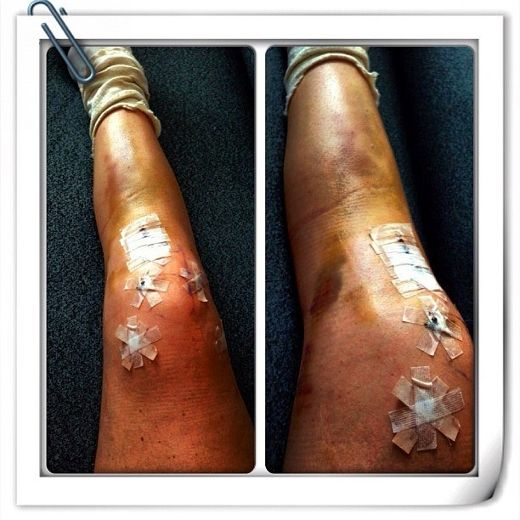 Lindsey Vonn Leg Photo On Instagram Lindsey Vonn Leg Photo By Request