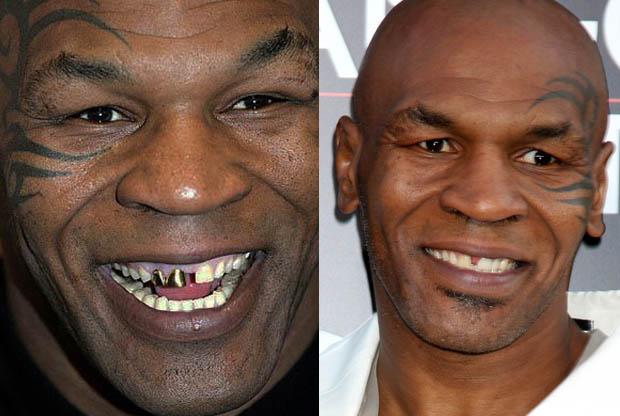 MIKE TYSON teeth | 620 x 416 jpeg 62kB