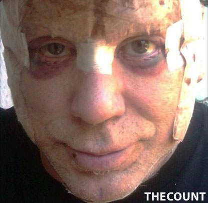 Mickey Rourke plastic surgery Mickey Rourke SHOCKING Plastic Surgery Recovery Photo
