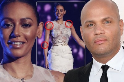 Spice Girl Mel B Rushed To Hospital With Mystery Illness 1