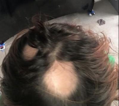 Wen shampoo bald spots