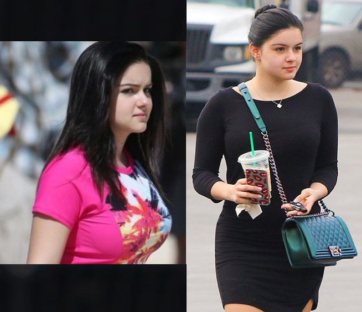Ariel Winter Breast Reduction Before After