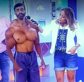 before and after muscle implants synthol 6