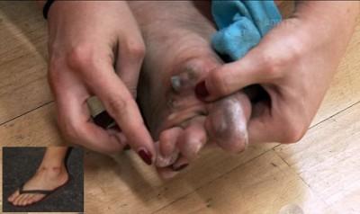 bindi irwin dtws injuries