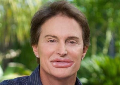 bruce jenner lip injections 5