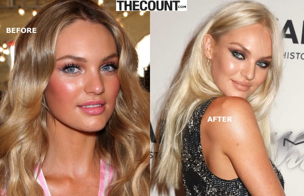 candice swanepoel new hair color SIZZLE! Candice Swanepoel Goes SUPER BLONDE For Summer!