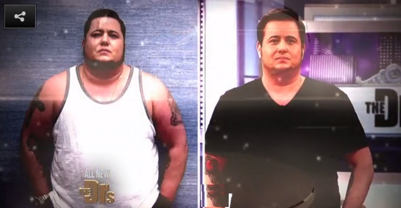 chaz bono before and after