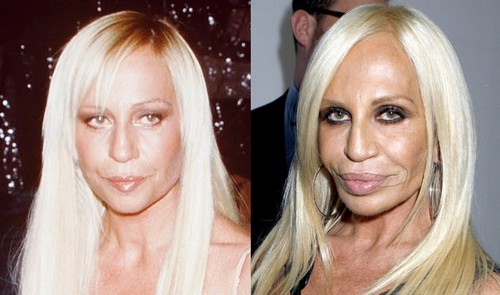 donatella versace Celebrity Plastic Surgery Before And After DISASTERS