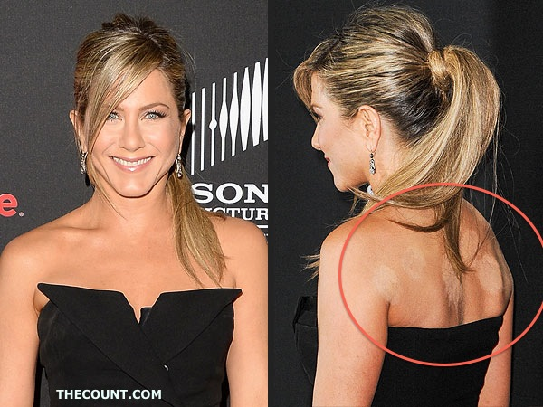 jennifer aniston 600 Jennifer Aniston Weird Cupping Marks Spark Illness Concerns