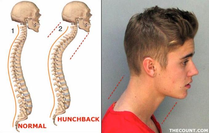 justin bieber mugshot-hunchback 1