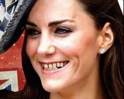 katemiddletoncabbageteeth Incase You Missed IT: Kate Middleton Lettuce Teeth Jab