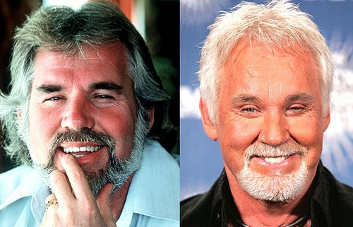 kenny rogers Celebrity Plastic Surgery Before And After DISASTERS
