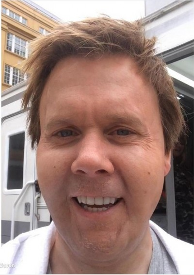 kevin bacon bloated 400x565 Kevin Bacon Fans Worried After Actor Posts Shocking Selfie