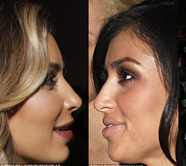 kim k before and after So Kim Kardashian Had A Nose Job?