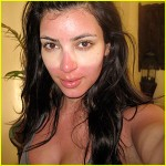kim-kardashian-sunburned