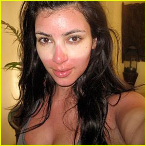 kim-kardashian-sunburned