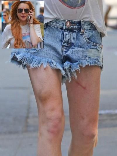 lindsay-lohan-skinny-bruised-legs