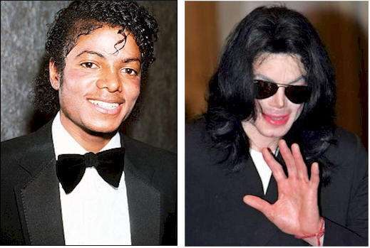 michael_jackson_before_and_after