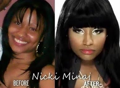 nicki-minaj-plastic-surgery-face