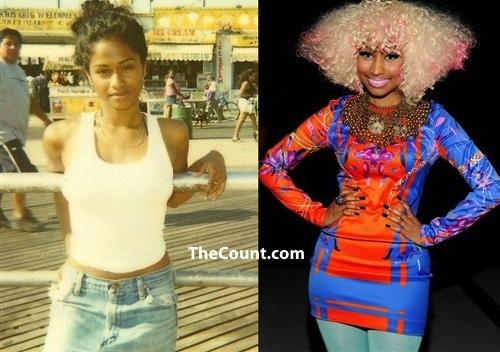 Nicki Minaj Before And After Thecount Com