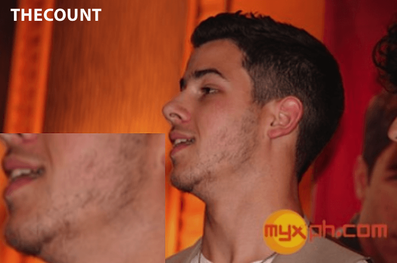 nickjonasfacialhair 11 Nick Jonas Beard Attempt Bald Spots