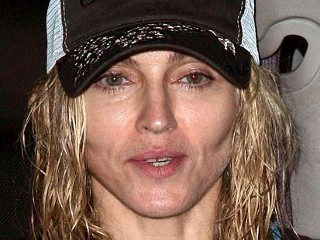 nm madonna old 090224 mn Madonna Totally Had Plastic Surgery