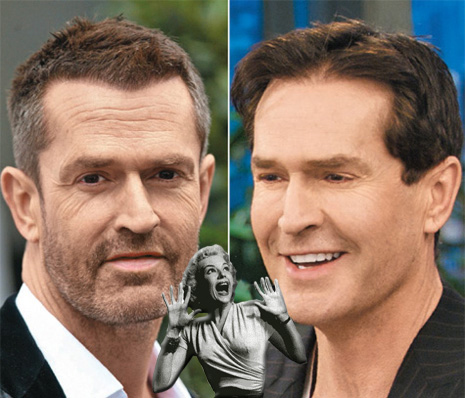 rupert everett new face The Hills Are Alive With Plastic Surgery