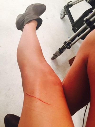 taylor swift cat scratch leg