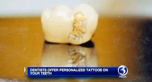 teeth-tatt-2