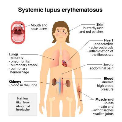 toni-braxton-lupus-symptoms