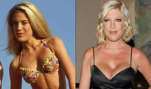 tori spelling Celebrity Plastic Surgery Before And After DISASTERS